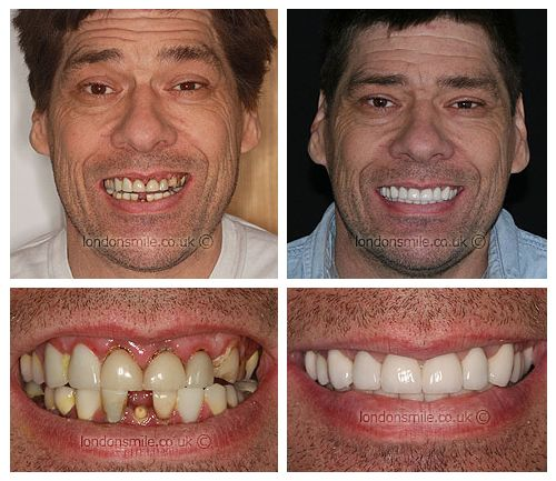 Full Mouth Reconstruction London Full Mouth Restoration London W1 â