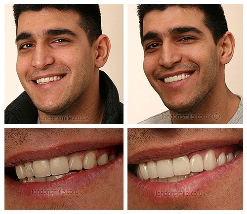 Dental Smile Makeover - London Smile Smile Makeover, Dental Smile