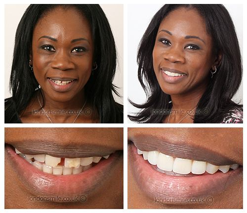 Teeth Veneers for Chipped Front Tooth and Large Gap - London Smile