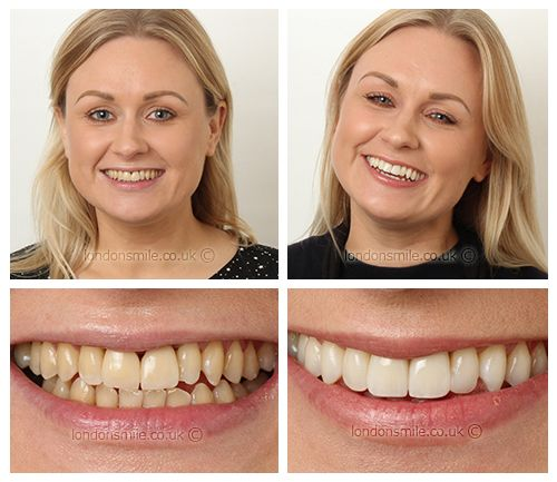 Cosmetic Dentist London W1 Cosmetic Dentistry The London Smile